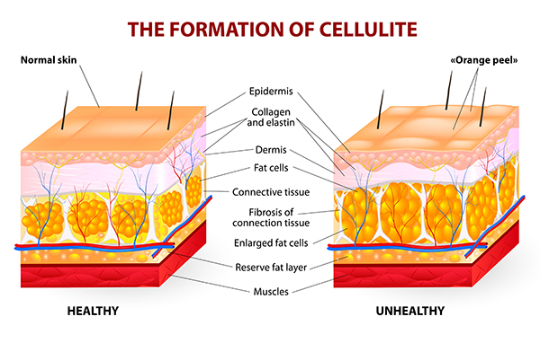 diagram showing normal skin and skin with cellulite with labels