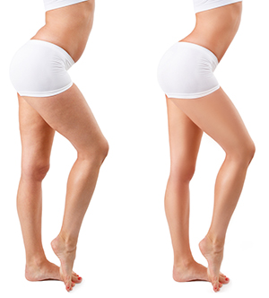 picture of two womens legs one with cellulite and one without
