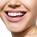 woman showing her teeth to show that moringa maintains strong and healthy teeth