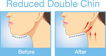 Reduced Double Chin Illustration before and after