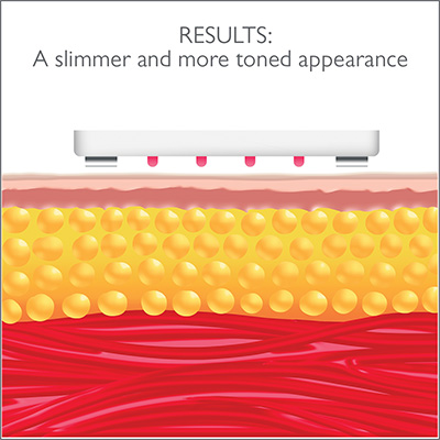 image showing a cartoon image of the skin and fat after using the device