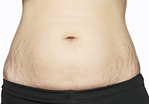 photograph of womans stomach and hips which have stretch marks