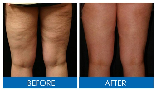 before and after pictures of woman with cellulite and woman without cellulite